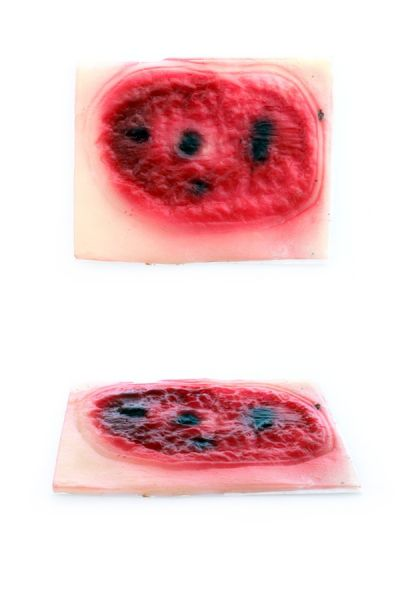 Narbe Verbrennungen Blut